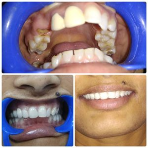 Top 10 Dentists in Kondapur Hyderabad, Secundrabad India, Excellent Dentist in India