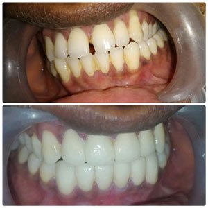 Best talanted dentist in kondapur Dental Hospital and Secundrabad India