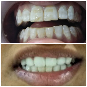 Kims dentists are best dentest in Kondapur Hyderabad India