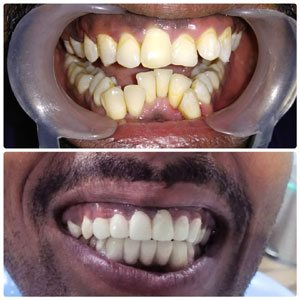 Kims dental hospital and responsible in dental hospital Kondapur I am recommand to this clinic