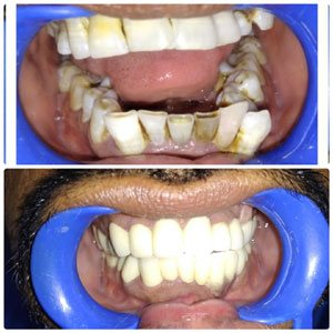 kims staff is best in Kondapur, Hyderabad India, Best Dental Clinic In kondapur also