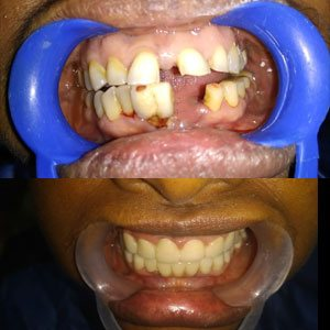 Kims dental hospital is Best Dental Clinic In kondapur and Great Dentist in India