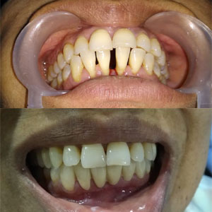 Kims dental hospital in Kondapur is giving best dental treatment for dental problems