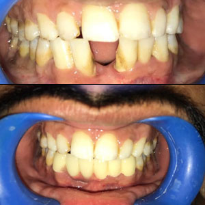 best dental clinic in Kondapur in India