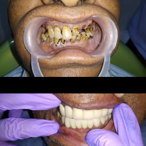 dental implants in Kondapur, Secundrabad India